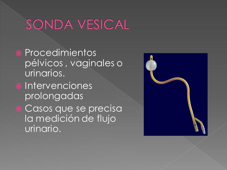 SONDA VESICAL Procedimientos pélvicos , vaginales o urinarios.