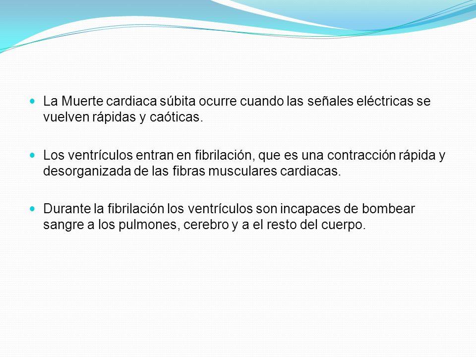 La Muerte cardiaca súbita ocurre cuando las señales eléctricas se vuelven rápidas y caóticas.
