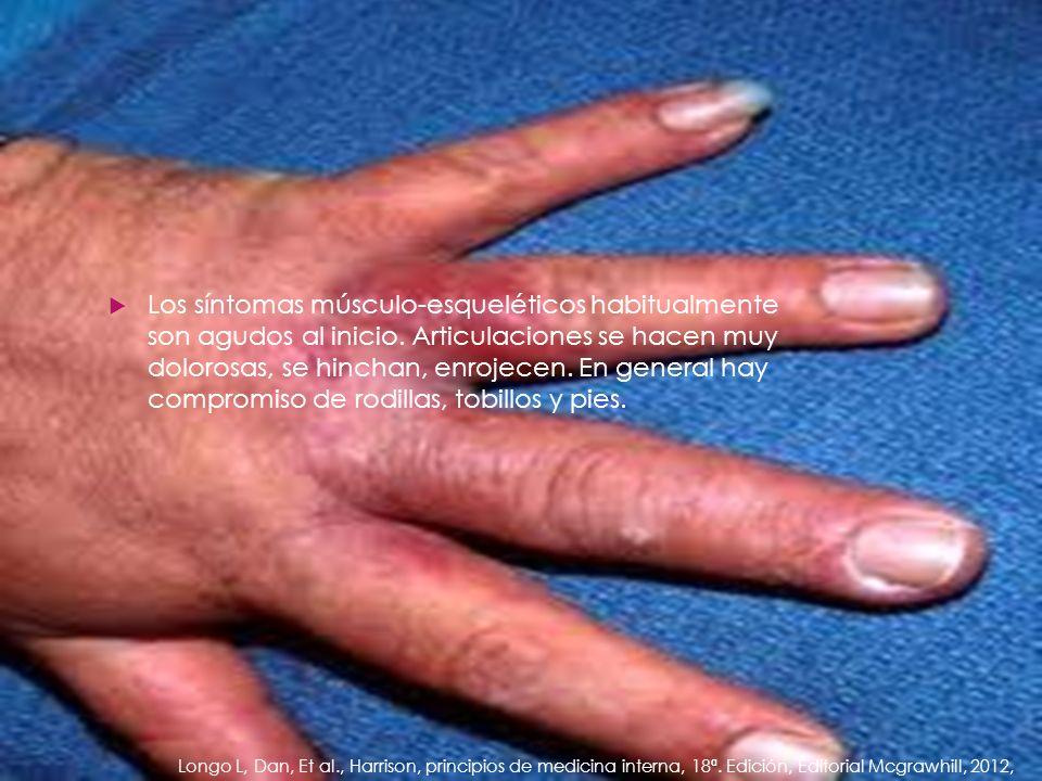 Los síntomas músculo-esqueléticos habitualmente son agudos al inicio