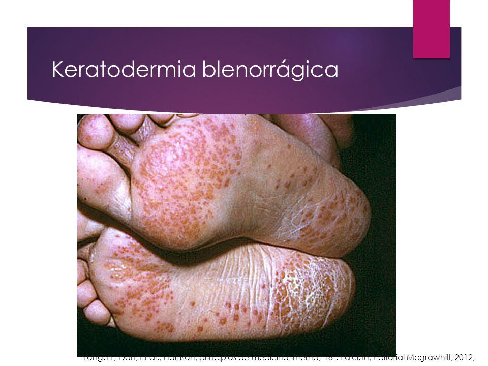 Keratodermia blenorrágica