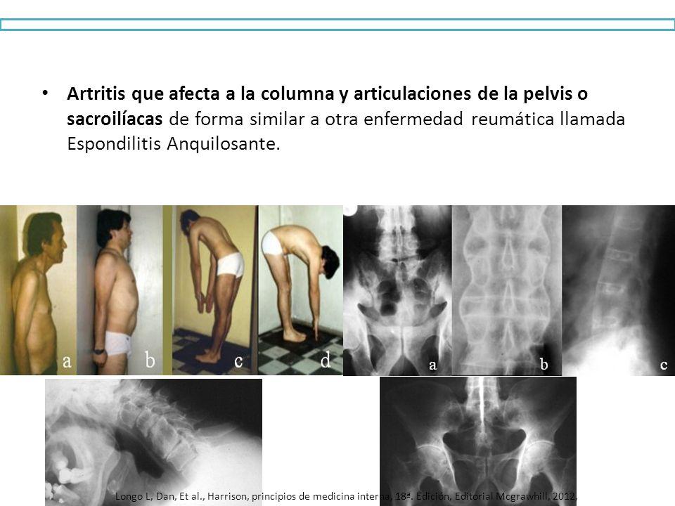 Artritis que afecta a la columna y articulaciones de la pelvis o sacroilíacas de forma similar a otra enfermedad reumática llamada Espondilitis Anquilosante.