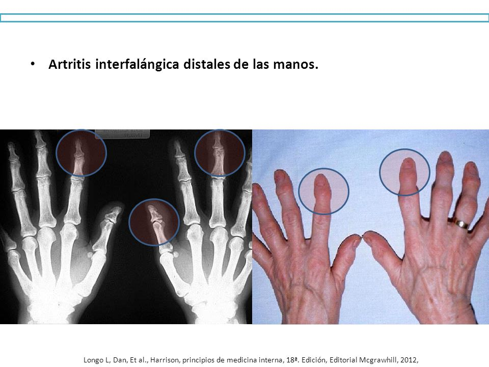 Artritis interfalángica distales de las manos.