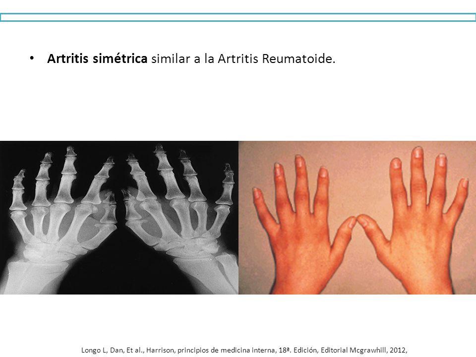 Artritis simétrica similar a la Artritis Reumatoide.