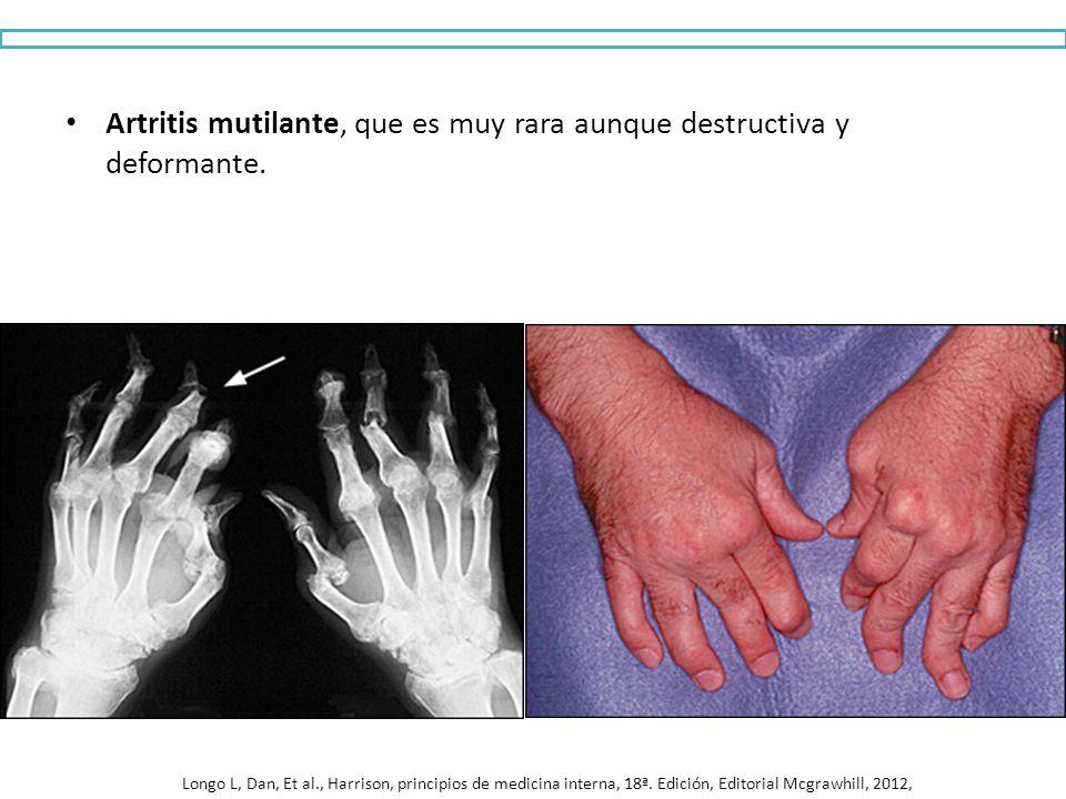 Artritis mutilante, que es muy rara aunque destructiva y deformante.