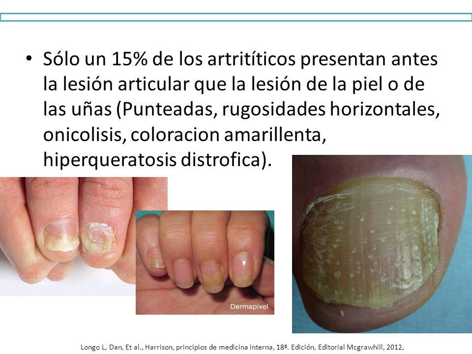 Sólo un 15% de los artritíticos presentan antes la lesión articular que la lesión de la piel o de las uñas (Punteadas, rugosidades horizontales, onicolisis, coloracion amarillenta, hiperqueratosis distrofica).