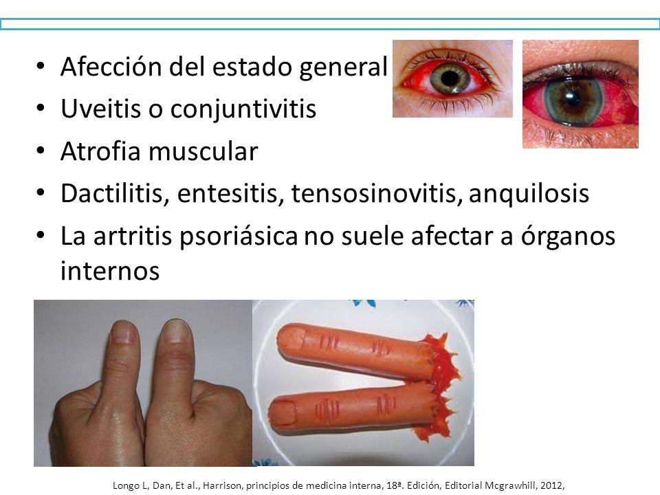 Afección del estado general Uveitis o conjuntivitis Atrofia muscular