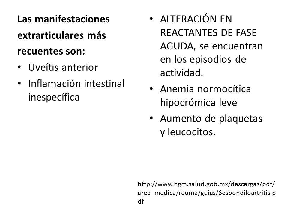 Inflamación intestinal inespecífica