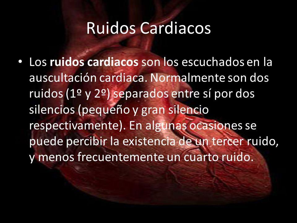 Ruidos Cardiacos