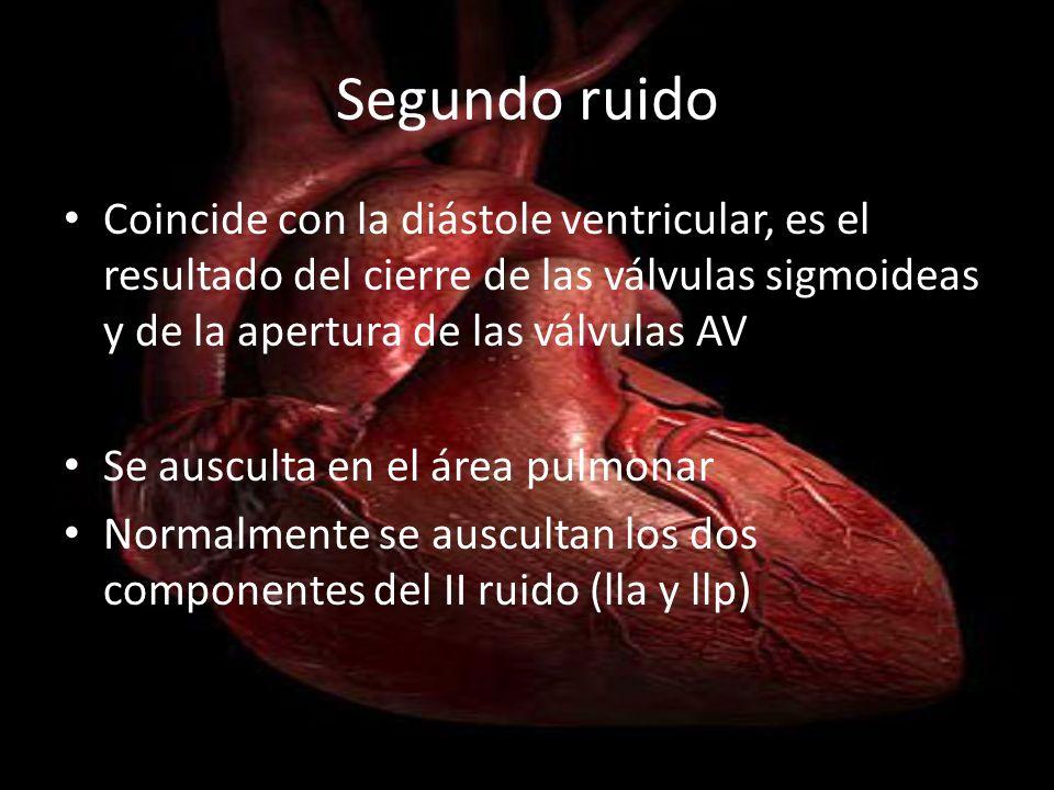 Segundo ruido Coincide con la diástole ventricular, es el resultado del cierre de las válvulas sigmoideas y de la apertura de las válvulas AV.