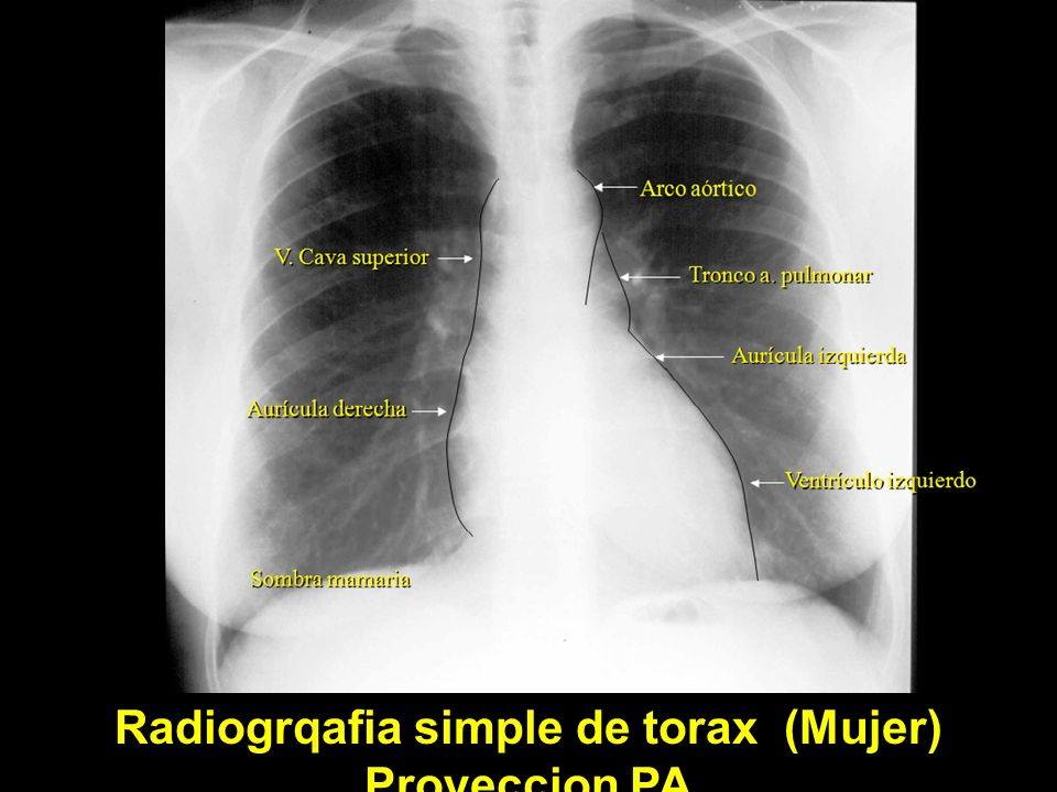 Radiogrqafia simple de torax (Mujer) Proyeccion PA