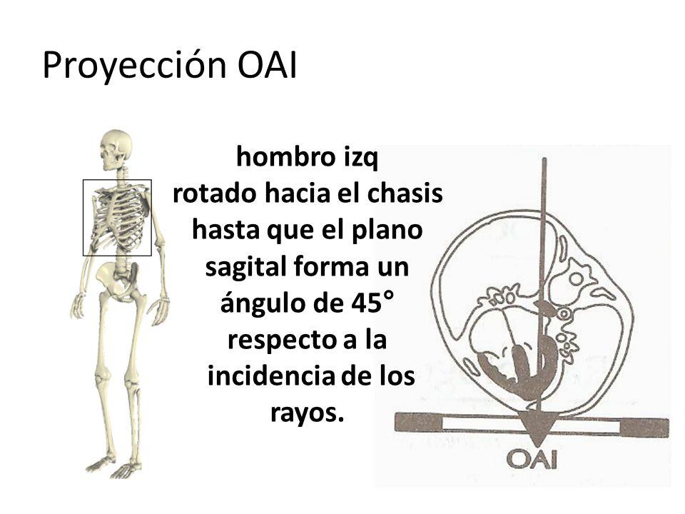 Proyección OAI hombro izq rotado hacia el chasis