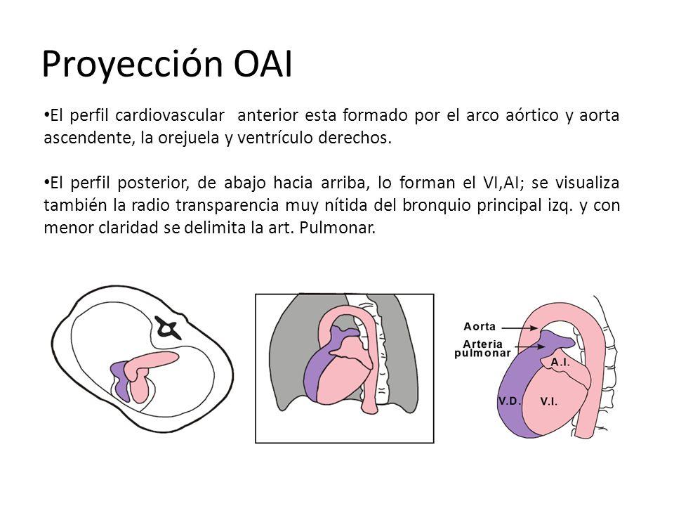 Proyección OAI El perfil cardiovascular anterior esta formado por el arco aórtico y aorta ascendente, la orejuela y ventrículo derechos.