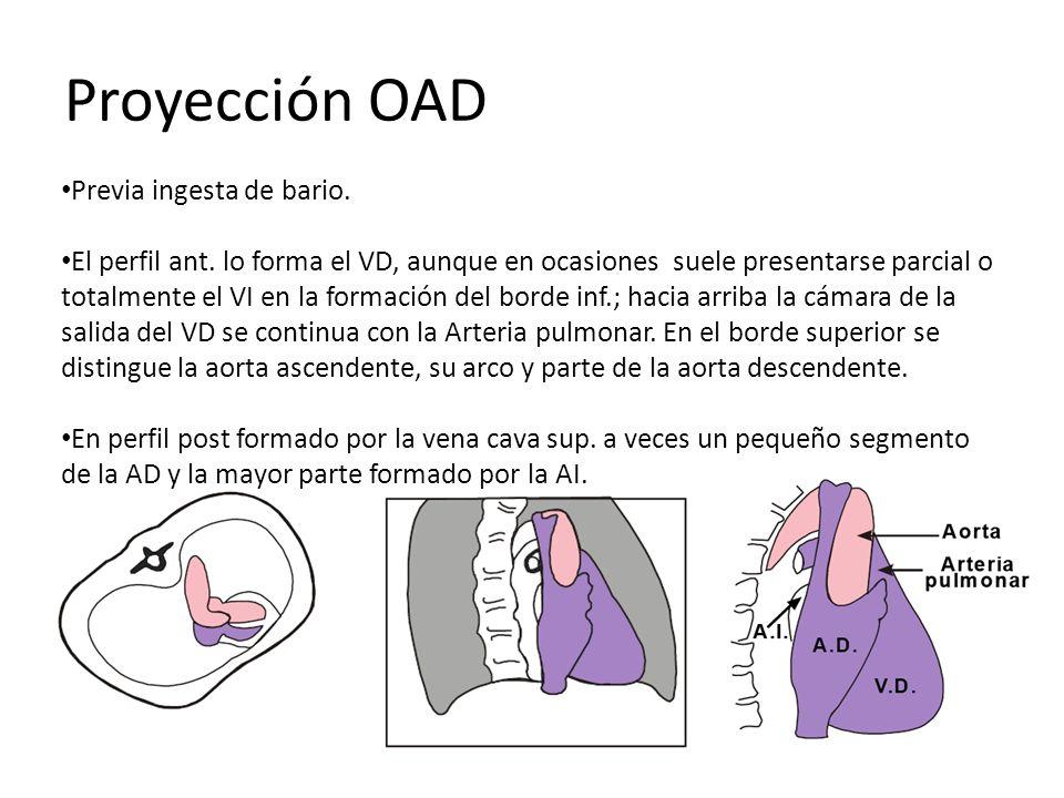 Proyección OAD Previa ingesta de bario.