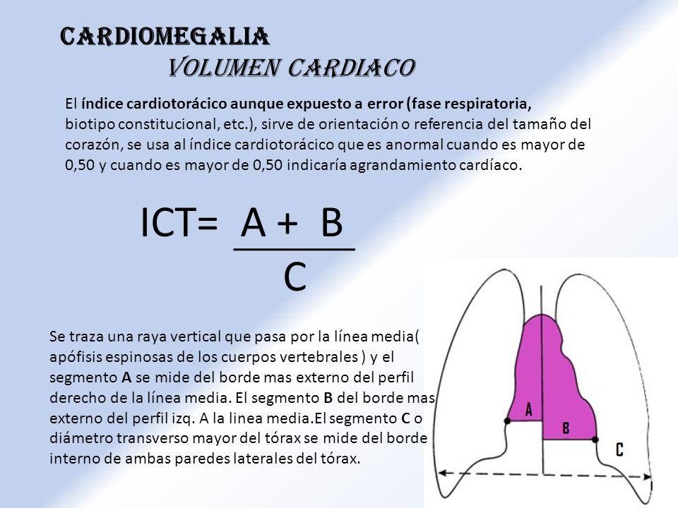 ICT= A + B C Cardiomegalia Volumen cardiaco