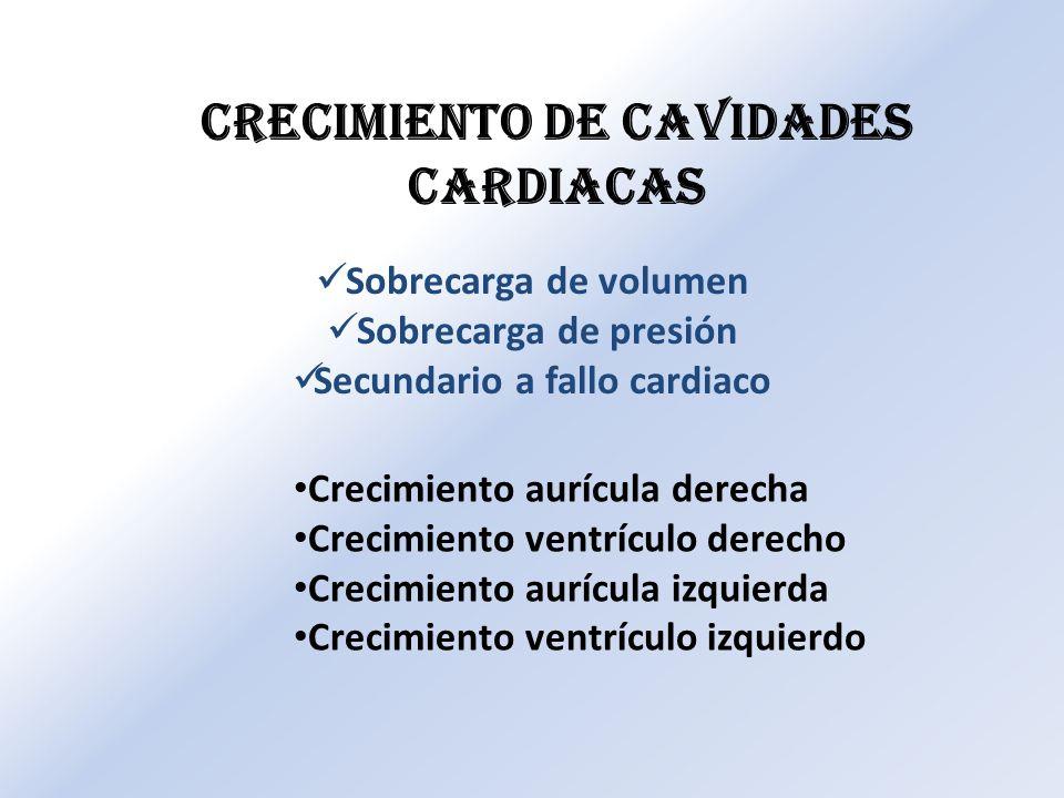 Crecimiento de cavidades cardiacas Secundario a fallo cardiaco