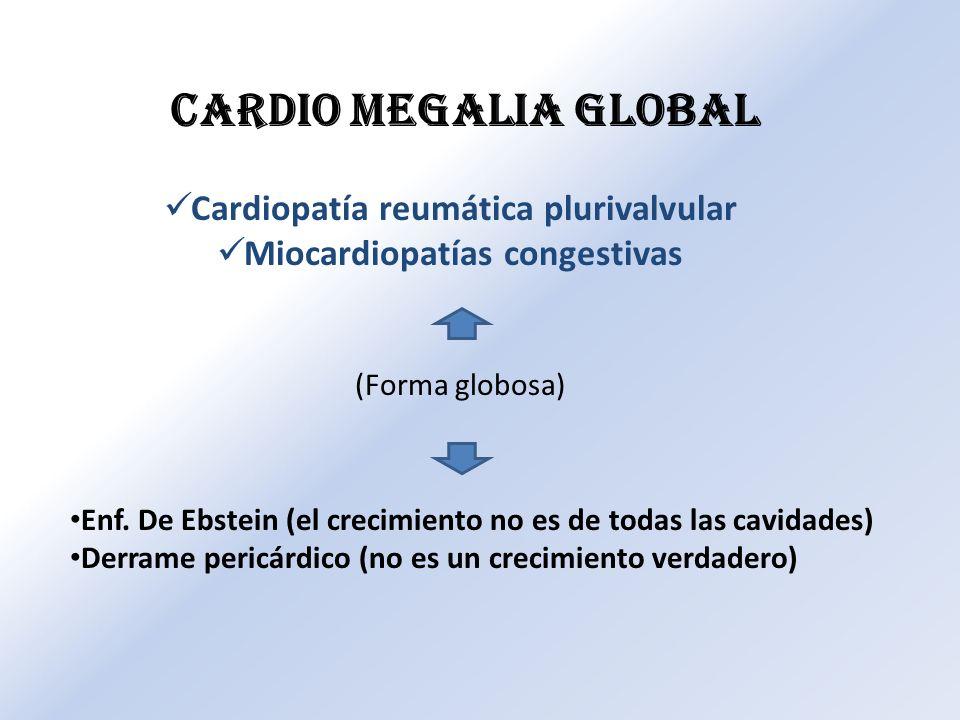 Cardiopatía reumática plurivalvular