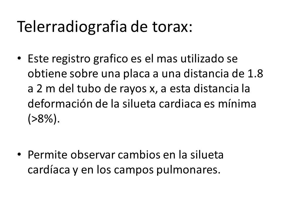 Telerradiografia de torax:
