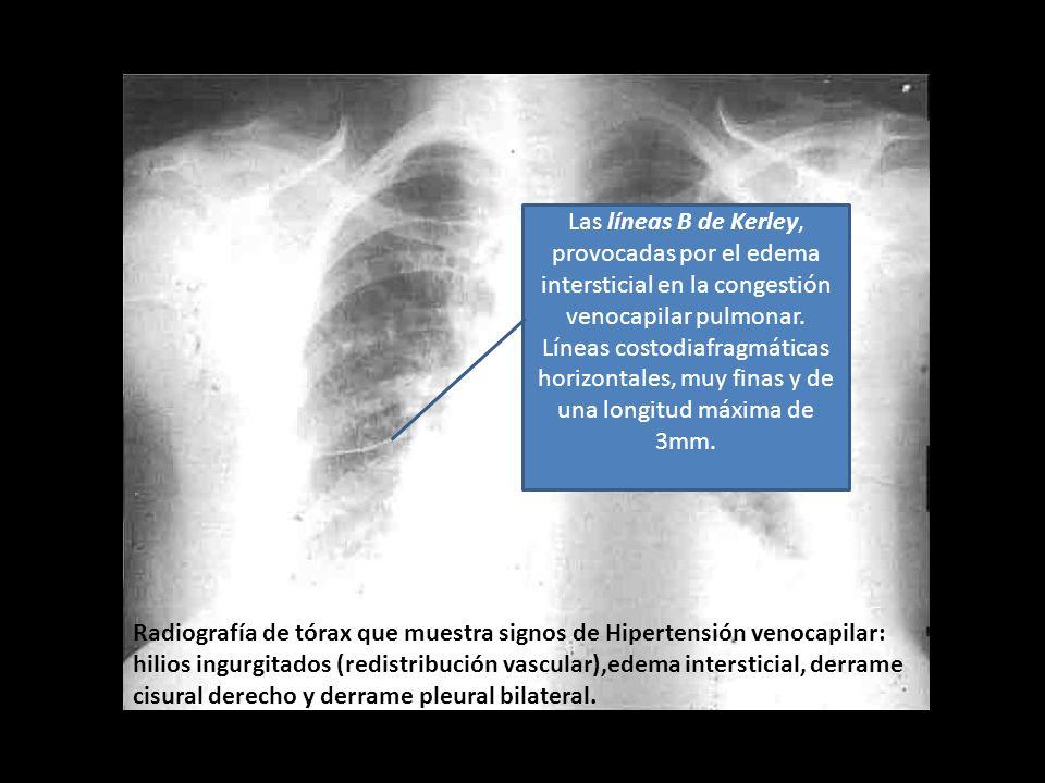 Las líneas B de Kerley, provocadas por el edema intersticial en la congestión venocapilar pulmonar. Líneas costodiafragmáticas horizontales, muy finas y de una longitud máxima de 3mm.