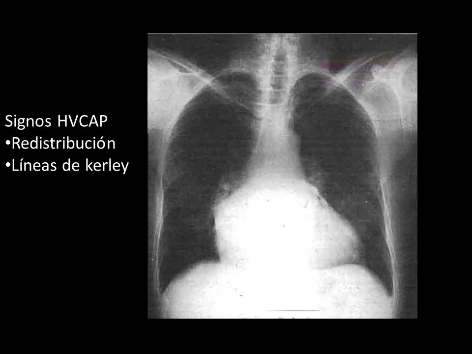 Signos HVCAP Redistribución Líneas de kerley