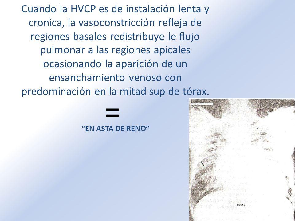 Cuando la HVCP es de instalación lenta y cronica, la vasoconstricción refleja de regiones basales redistribuye le flujo pulmonar a las regiones apicales ocasionando la aparición de un ensanchamiento venoso con predominación en la mitad sup de tórax.