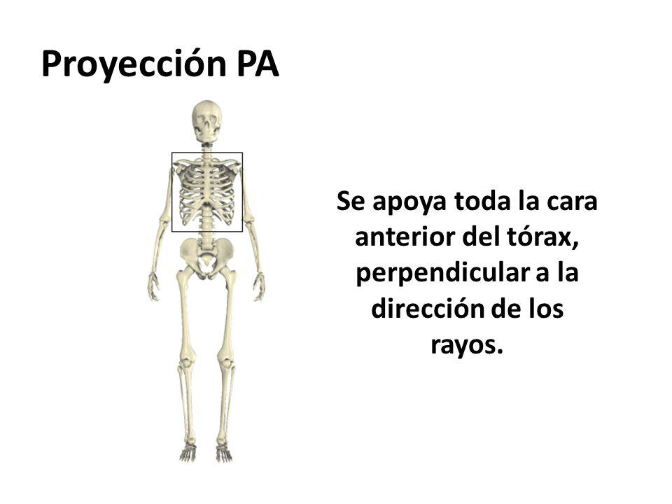 Proyección PA Se apoya toda la cara anterior del tórax, perpendicular a la dirección de los rayos.