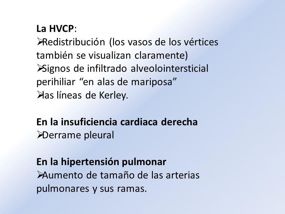 La HVCP: Redistribución (los vasos de los vértices también se visualizan claramente)