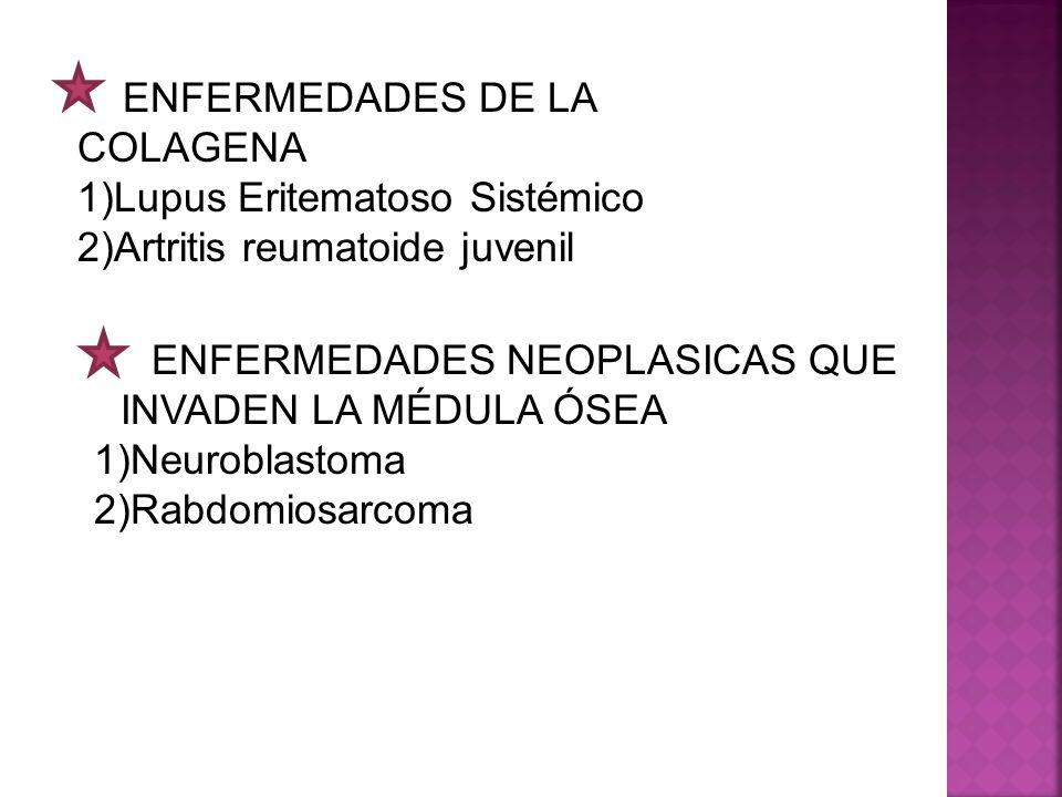 ENFERMEDADES DE LA COLAGENA Lupus Eritematoso Sistémico