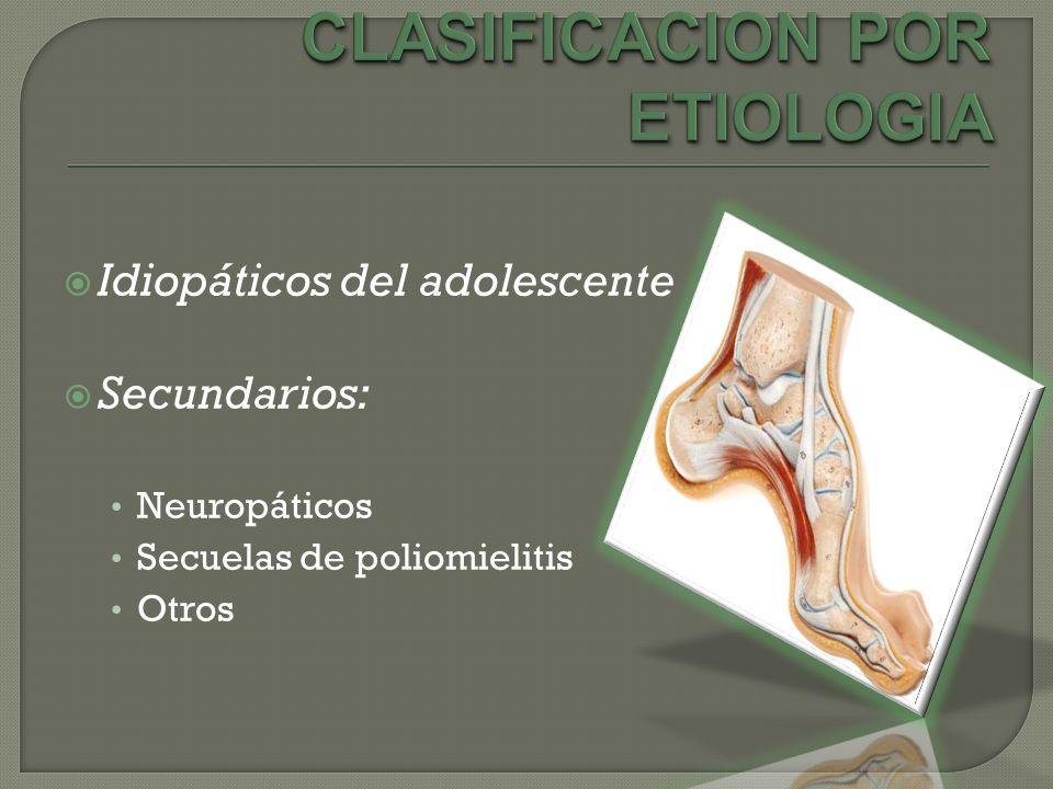 CLASIFICACION POR ETIOLOGIA