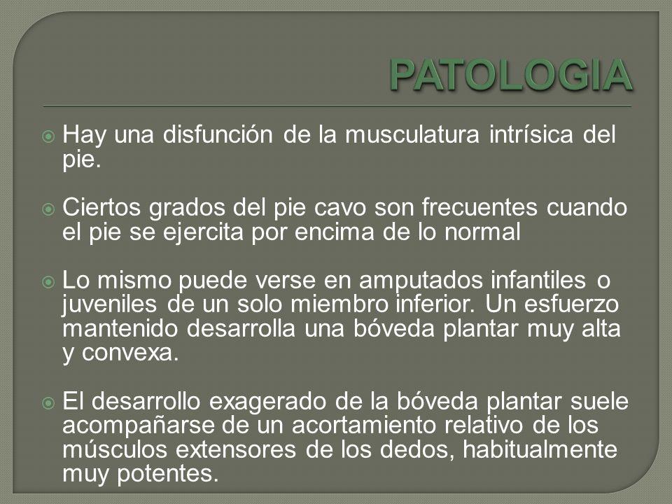 PATOLOGIA Hay una disfunción de la musculatura intrísica del pie.