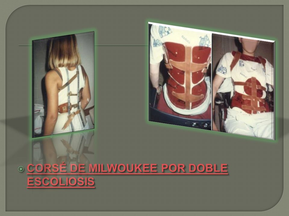 CORSÉ DE MILWOUKEE POR DOBLE ESCOLIOSIS