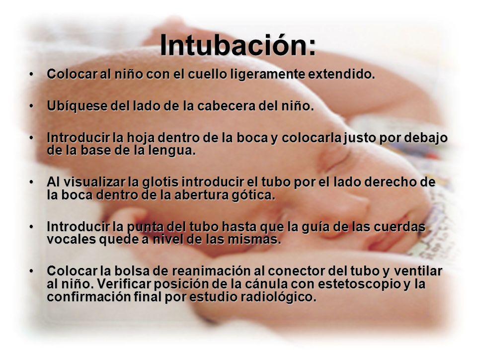 Intubación: Colocar al niño con el cuello ligeramente extendido.