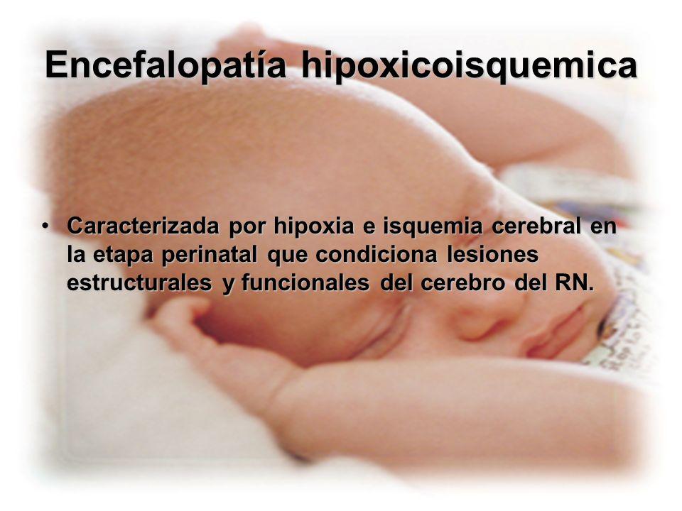 Encefalopatía hipoxicoisquemica