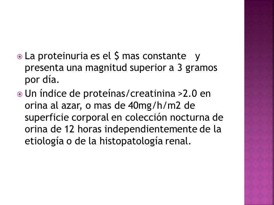 La proteinuria es el $ mas constante y presenta una magnitud superior a 3 gramos por día.
