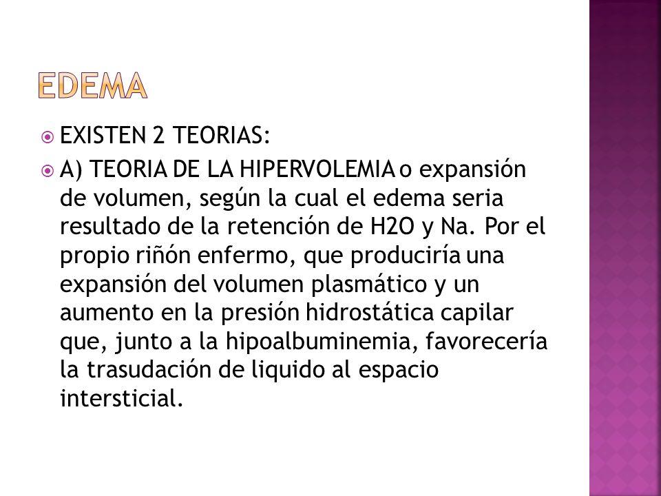 EDEMA EXISTEN 2 TEORIAS: