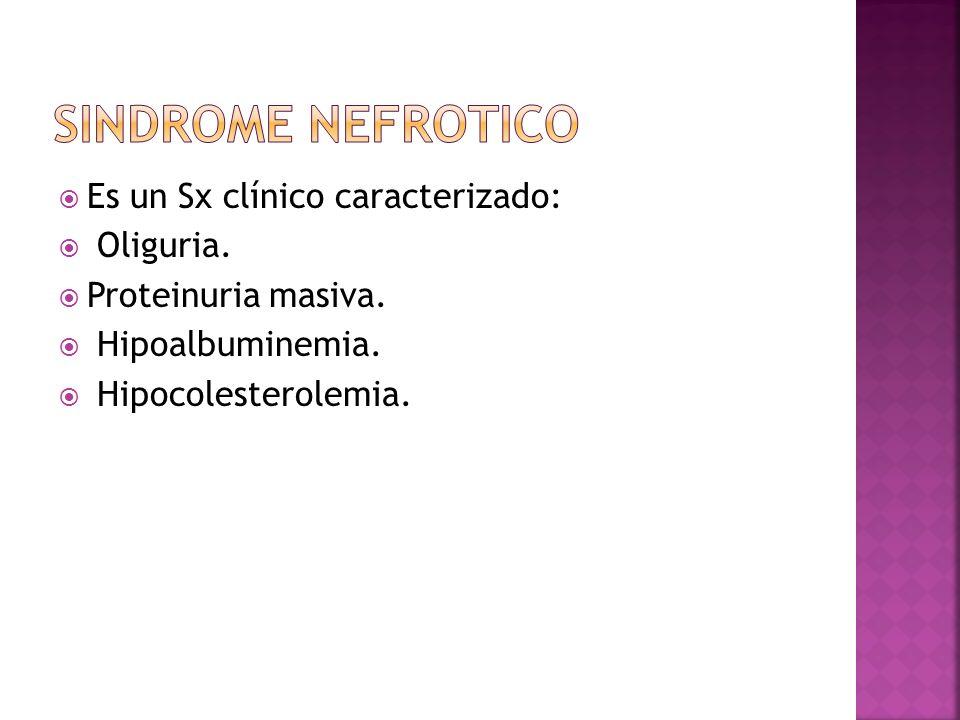 SINDROME NEFROTICO Es un Sx clínico caracterizado: Oliguria.