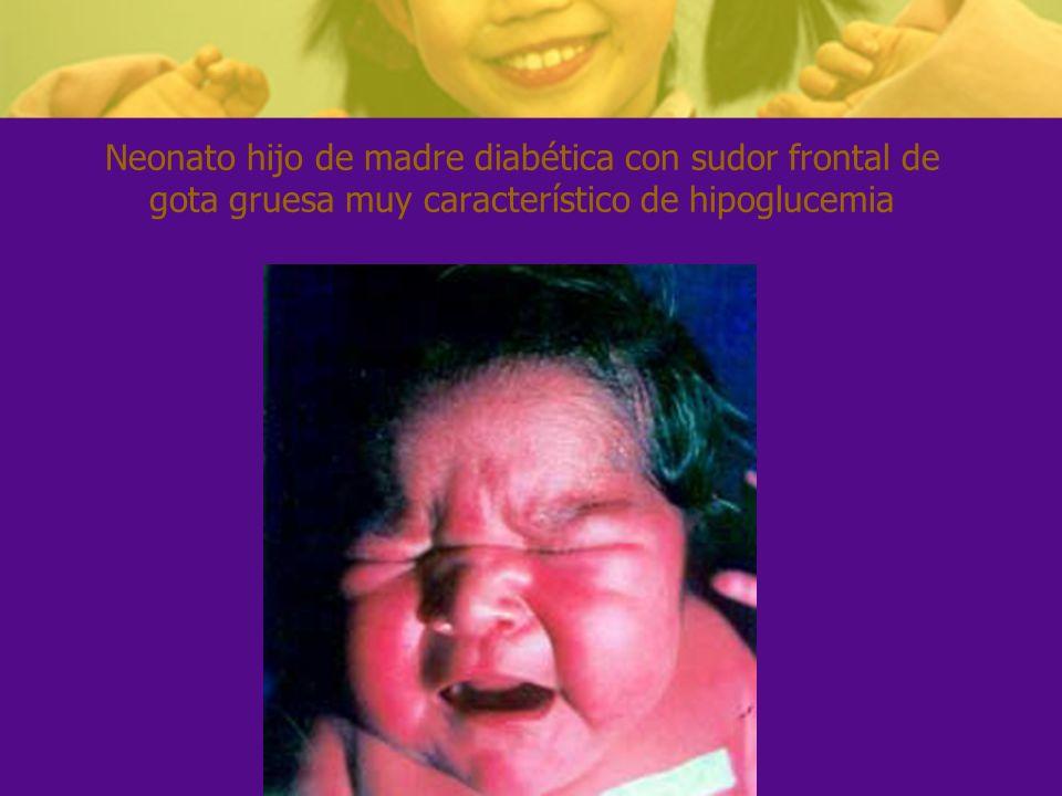 Neonato hijo de madre diabética con sudor frontal de gota gruesa muy característico de hipoglucemia