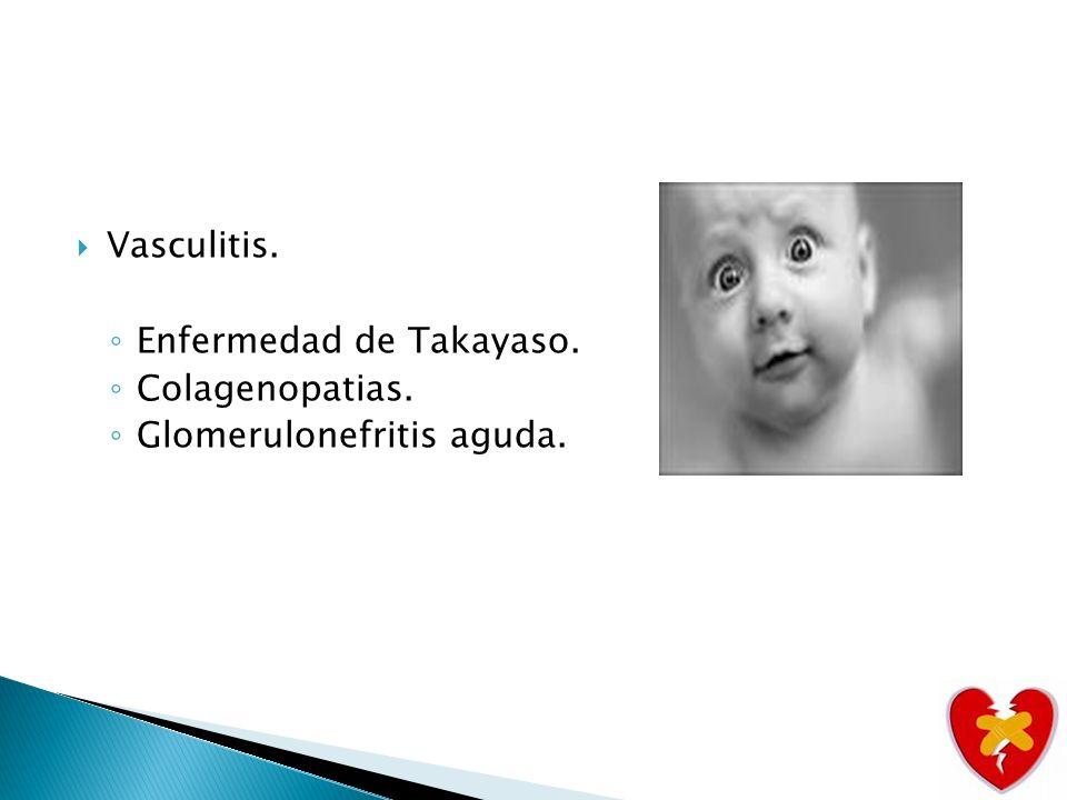 Vasculitis. Enfermedad de Takayaso. Colagenopatias. Glomerulonefritis aguda.