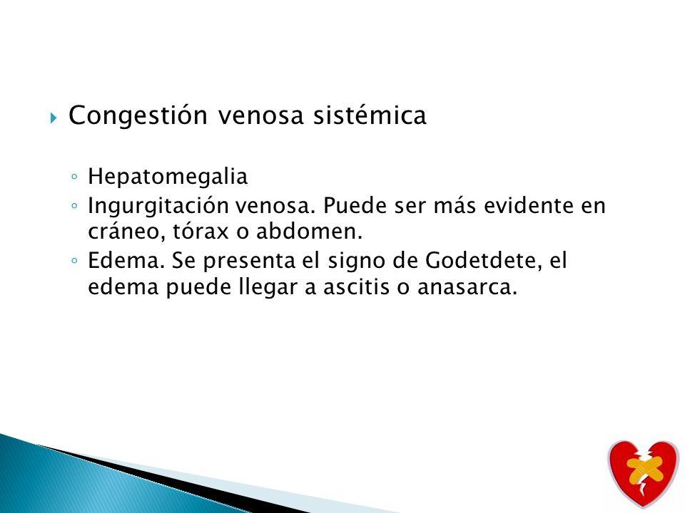 Congestión venosa sistémica