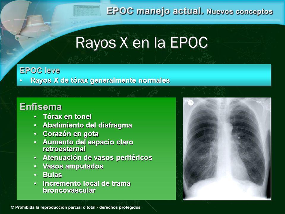 Rayos X en la EPOC Enfisema EPOC leve