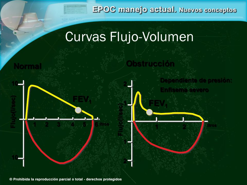 Curvas Flujo-Volumen Obstrucción Normal FEV1 FEV1 10