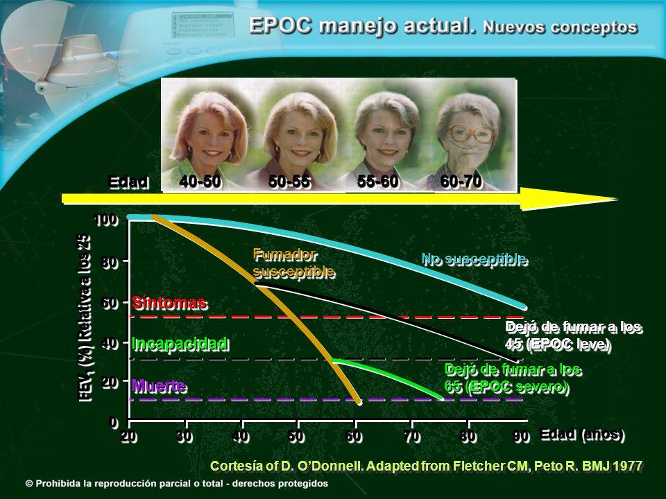 40-50 Edad 50-55 55-60 60-70 FEV1 (%) Relativa a los 25 Muerte