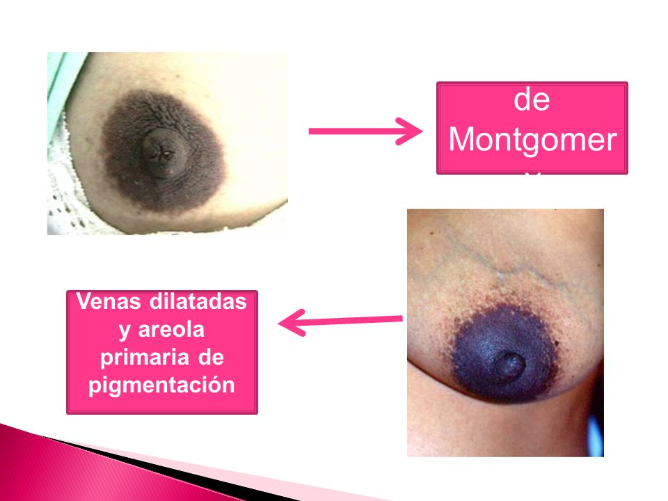 Venas dilatadas y areola primaria de pigmentación