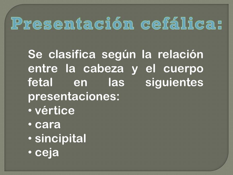 Presentación cefálica: