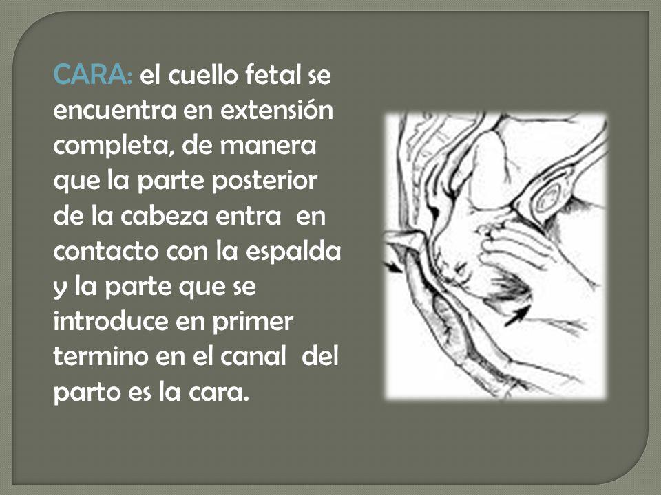 CARA: el cuello fetal se encuentra en extensión completa, de manera que la parte posterior de la cabeza entra en contacto con la espalda y la parte que se introduce en primer termino en el canal del parto es la cara.