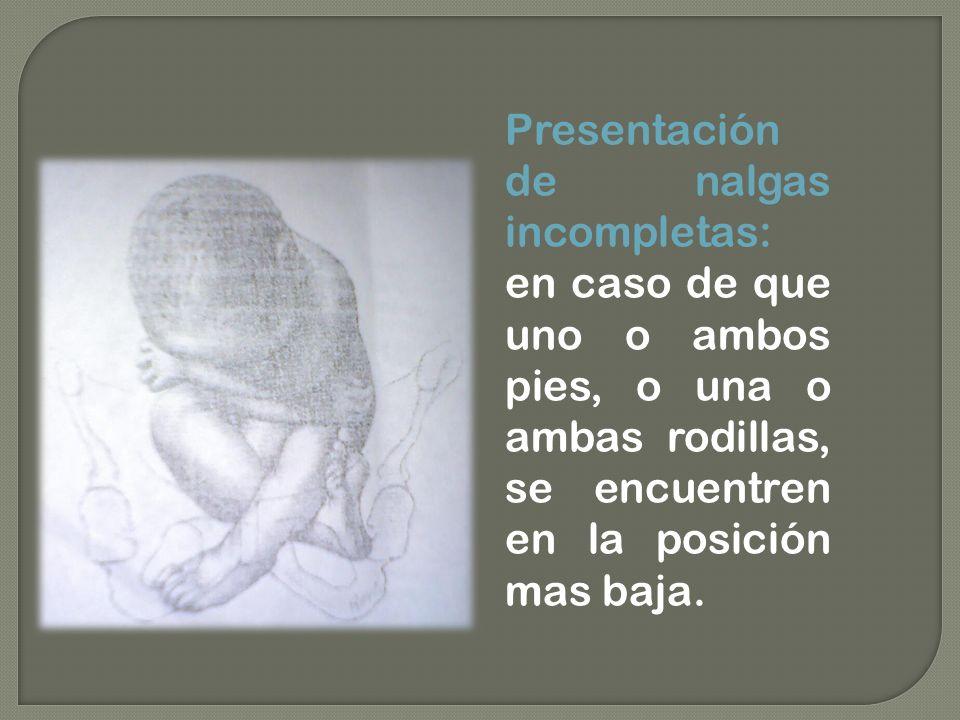 Presentación de nalgas incompletas: en caso de que uno o ambos pies, o una o ambas rodillas, se encuentren en la posición mas baja.