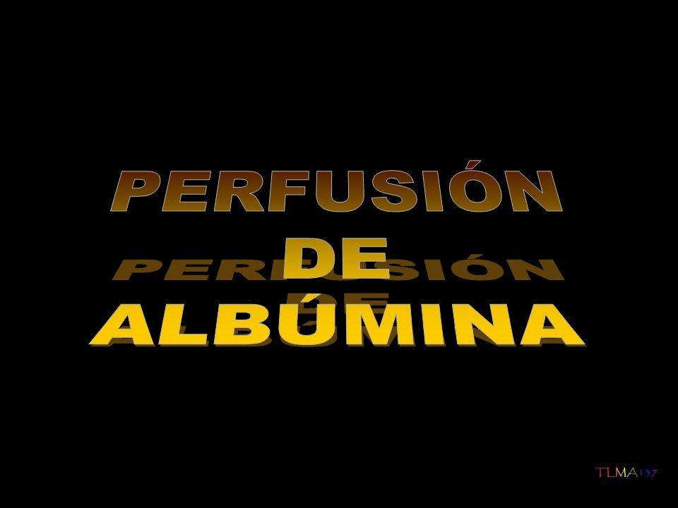 PERFUSIÓN DE ALBÚMINA