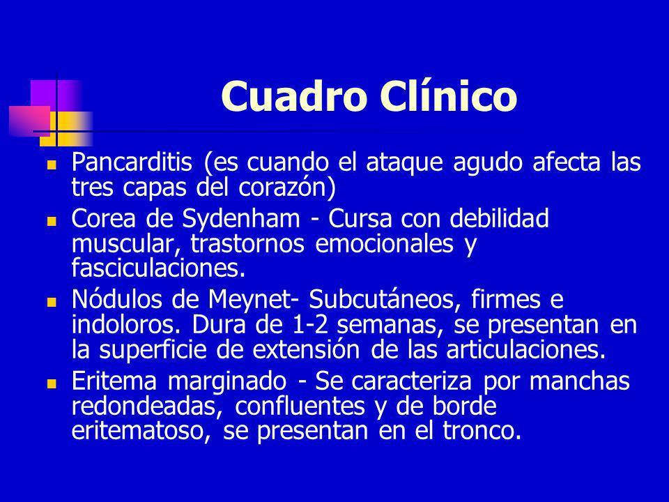 Cuadro ClínicoPancarditis (es cuando el ataque agudo afecta las tres capas del corazón)