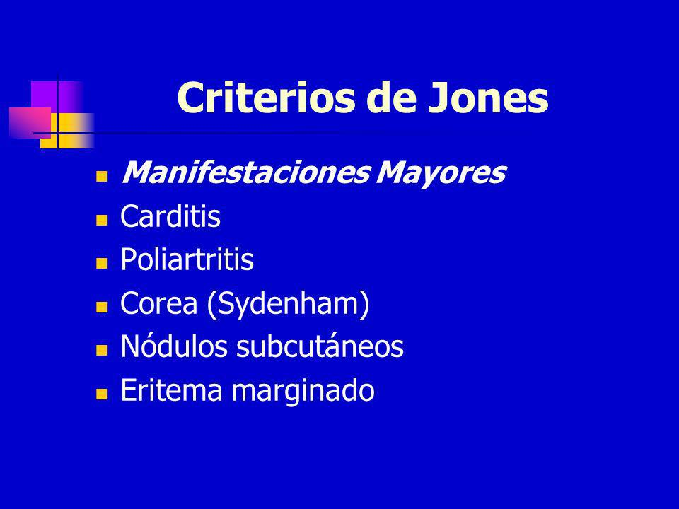 Criterios de Jones Manifestaciones Mayores Carditis Poliartritis