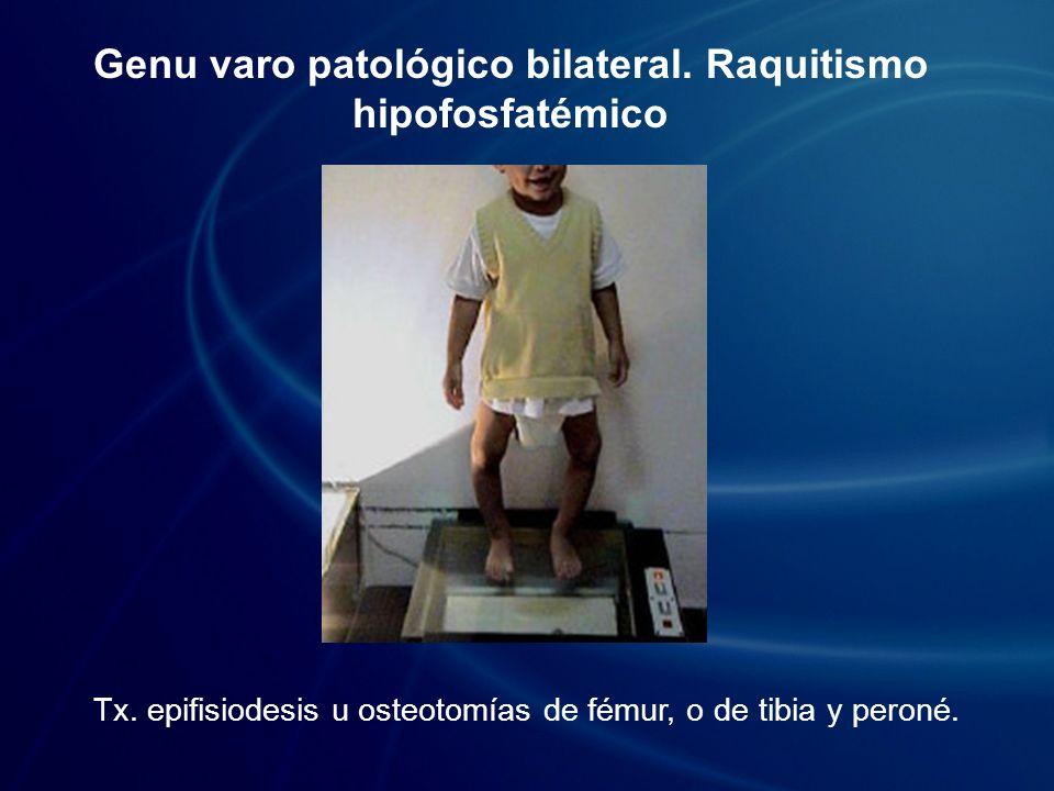 Genu varo patológico bilateral. Raquitismo hipofosfatémico