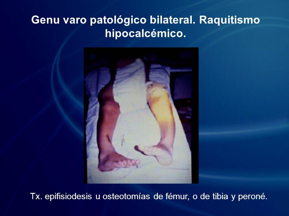 Genu varo patológico bilateral. Raquitismo hipocalcémico.